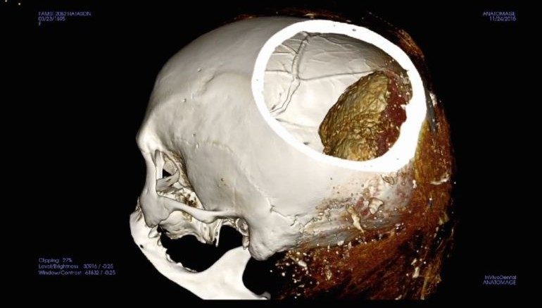 Mysterious_Dark_Substance_Inside_Mummy_Skull