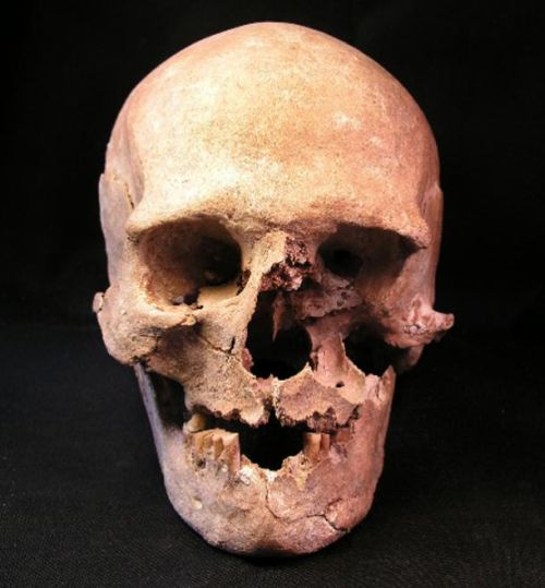 Mysterious_Graves_ 8500-Year Old_European_Cemetery_Gross_Fredenwalde_2
